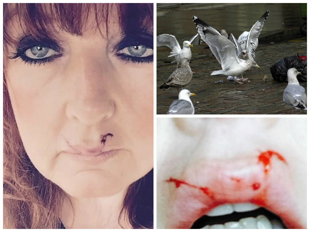 Jean Middleton, Buckie, who was walking her King Charles spaniel, Jackson, when she was attacked by a gull which cut her top lip