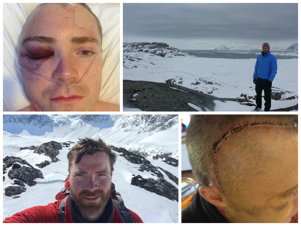 Luke Robertson underwent brain surgery last year but now hopes to complete a solo expedition to the South Pole