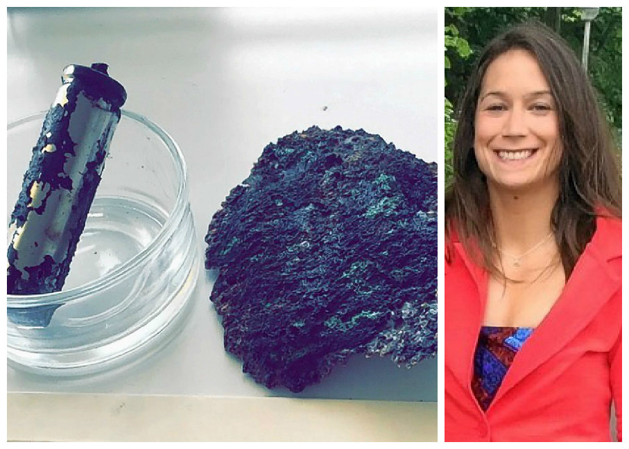 A medical student has suffered serious burns after her phone charger exploded and set her bedroom on fire
