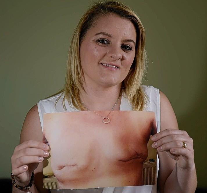 Amanda Stewart shows pictures of the scarring