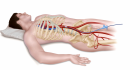 The treatment works by cutting off blood flow to the lower body
