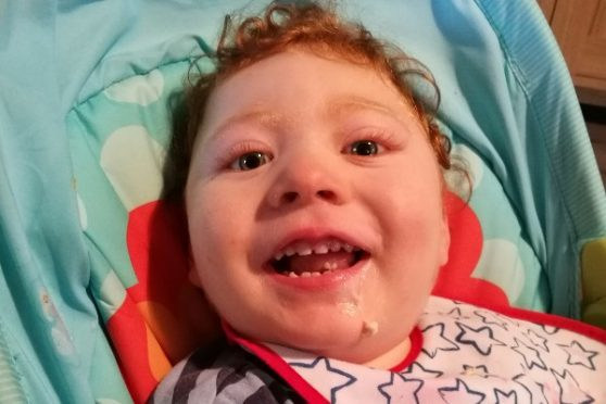 More than 150 runners have joined forces to raise funds to help two-year-old Inverness boy Sam Douglas walk for the first time.