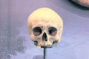 The skull from the personal collection of Sir Walter Scott is to be scientifically analysed.