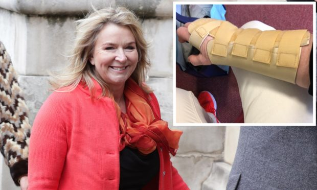 Fern Britton and (inset) a photo she posted of her sore arm.
