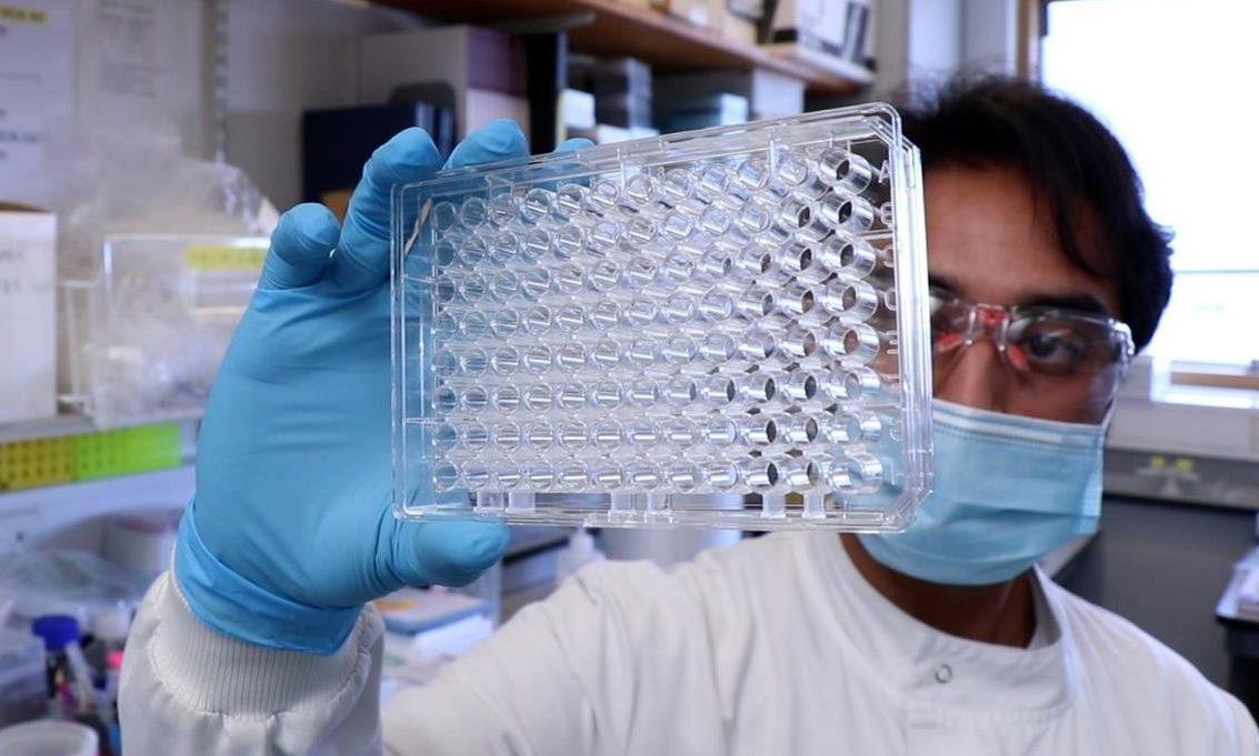 Aberdeen Covid Antibody Tests 1 e1623750520663 3 e1623772573705.